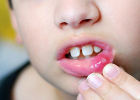 Стоматит у детей как лечить